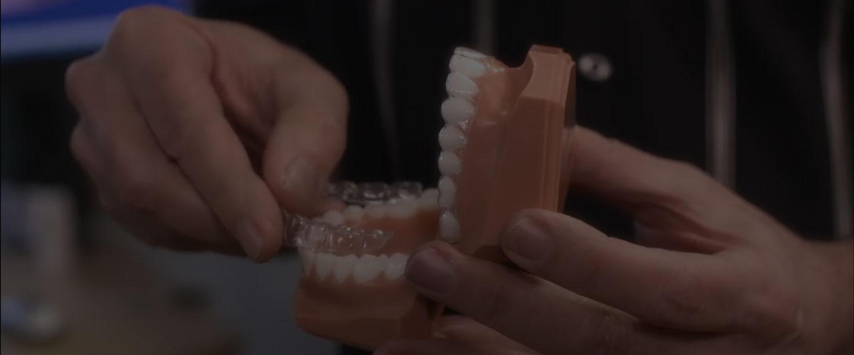 SureSmile® braces